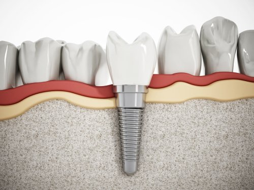 dental-implants-in-issaquah